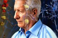 Десять изменений в образе жизни, которые защитят Вас от болезни Альцгеймера в старости